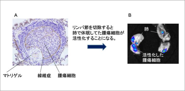 リンパ節郭清後にともなう遠隔臓器における腫瘍細胞の活性化に関する研究